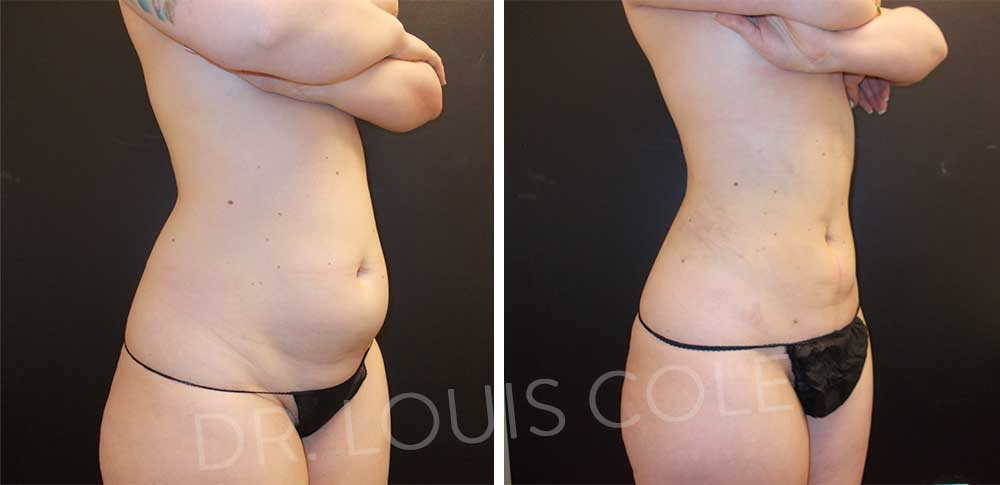 Liposuction 360 results