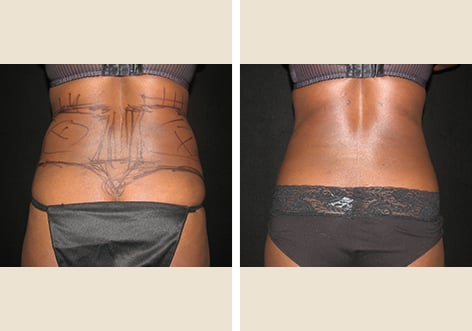 before after liposuction 04