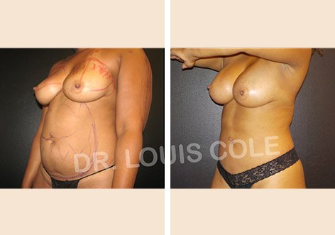 Atlanta Liposuction