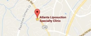 map atlanta liposuction e1497396904375