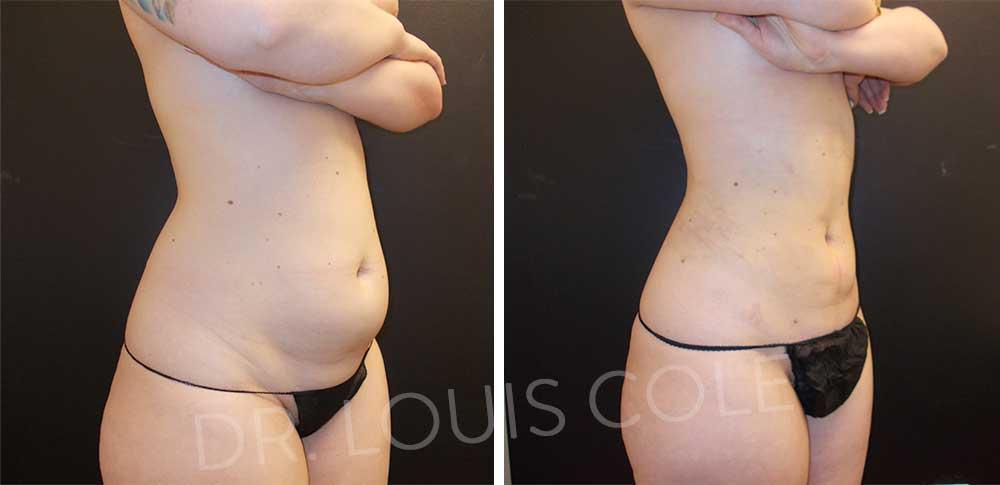 SmartLipo - Body shaping & cellulite