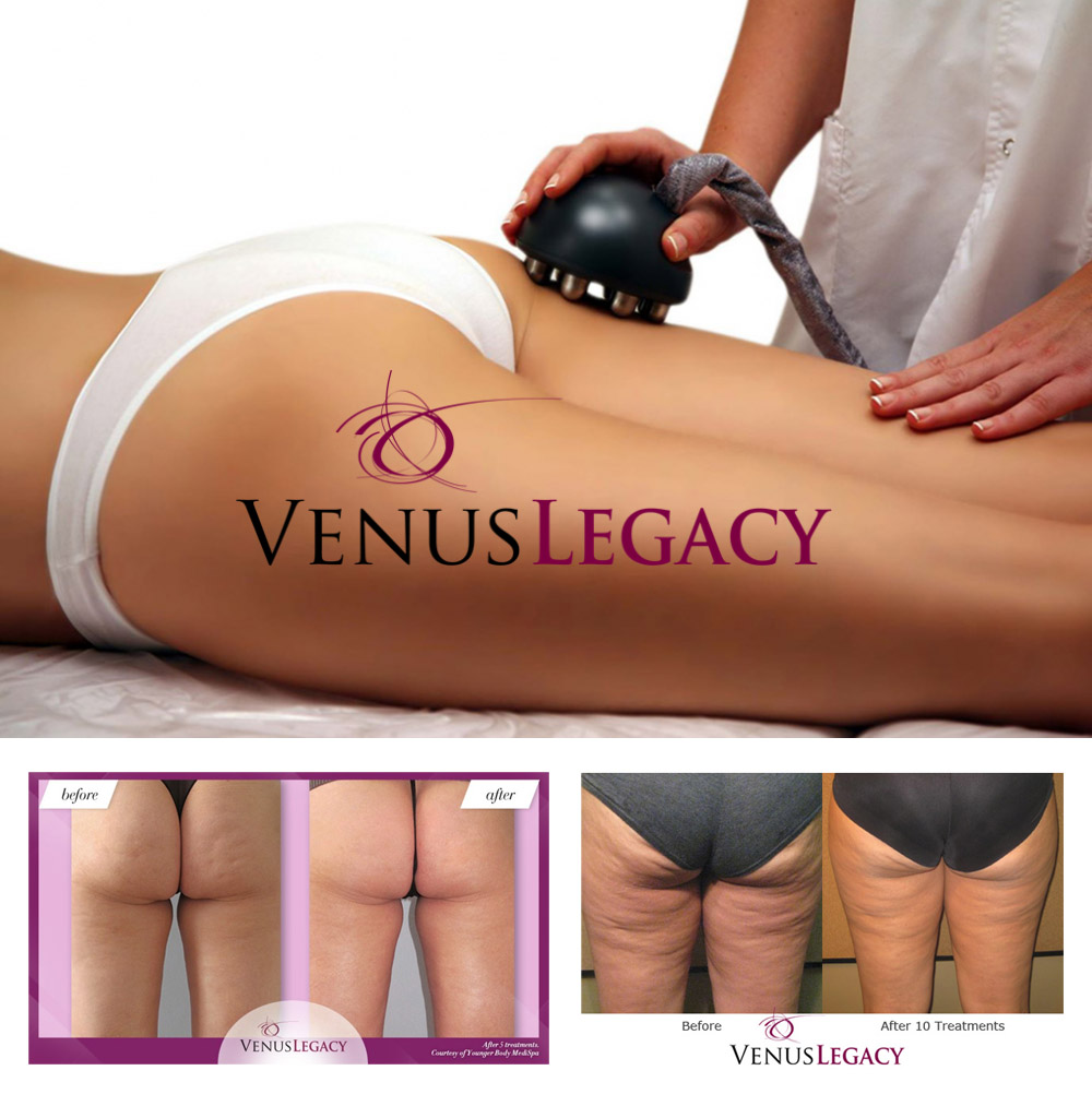 Venus Legacy Package