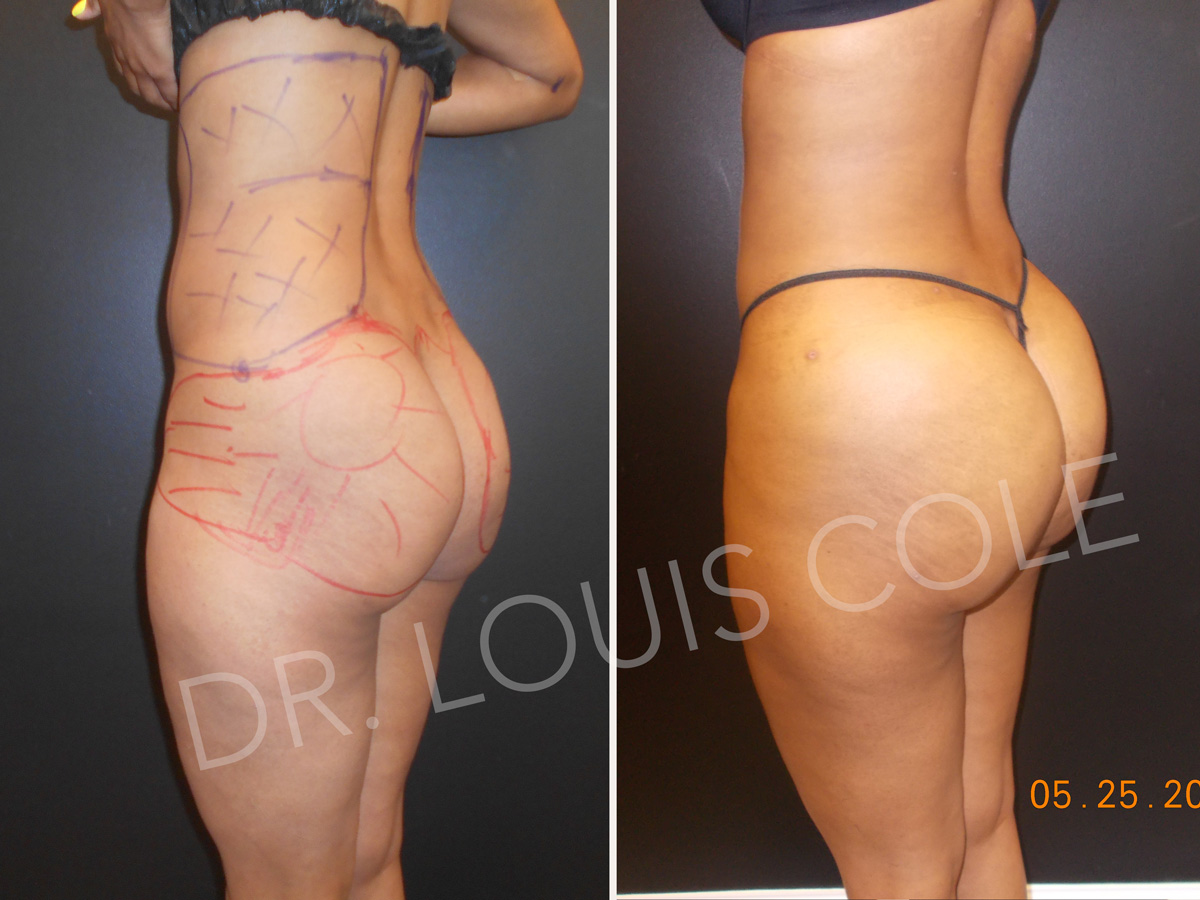 d52f8197174 Brazilian Butt Lift - Atlanta Liposuction Specialty Clinic