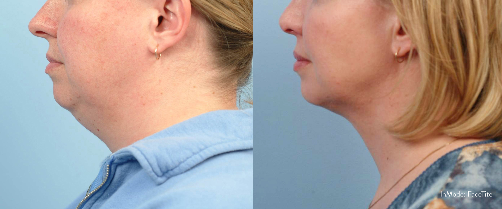 Face Tite - Chin and Neck - Male Patient