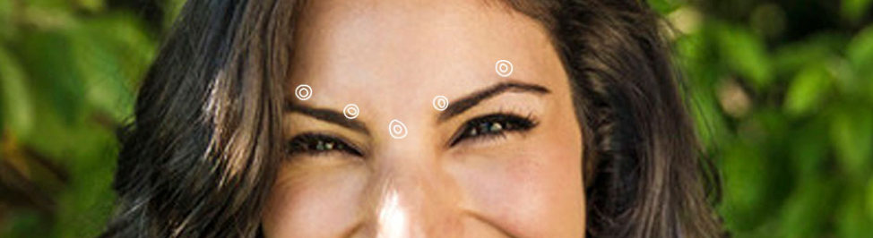 Treatment for Lines Between the Brows