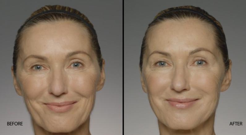 Restylane Defyne Before & after