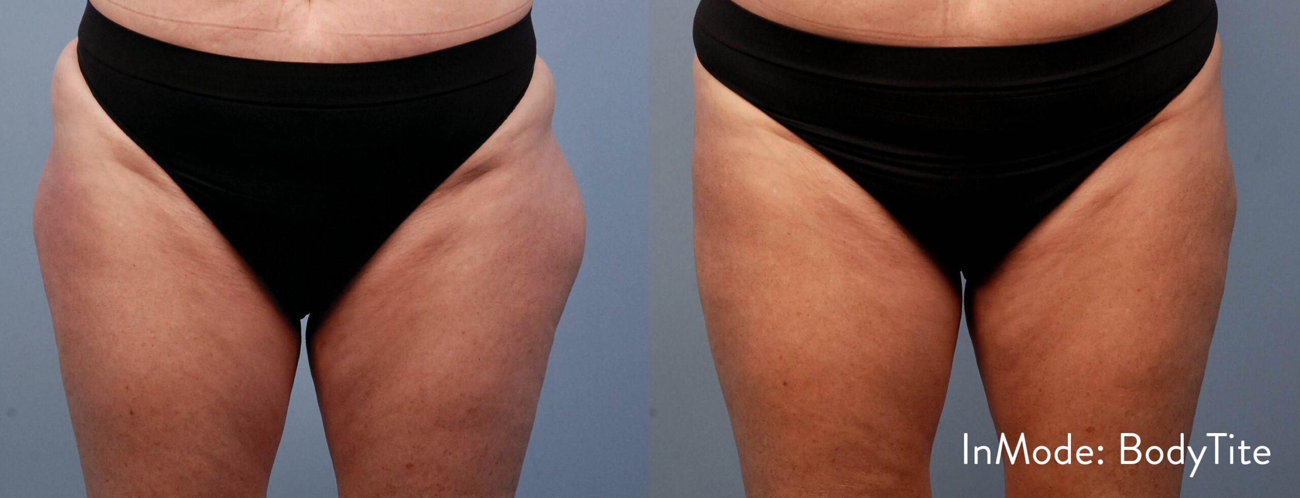 Body Tite - Thighs
