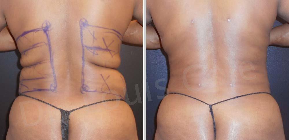 liposuccion de espalda